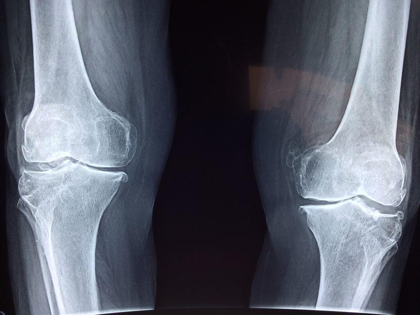 CBD olie mod Gigt bilde af røntgen